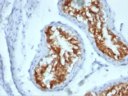 Immunohistochemistry (Formalin/PFA-fixed paraffin-embedded sections) - Anti-Fascin antibody [FSCN1/417] (ab220195)