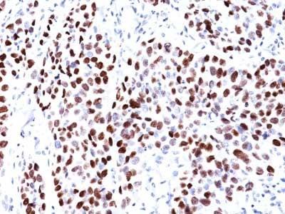 Immunohistochemistry (Formalin/PFA-fixed paraffin-embedded sections) - Anti-p21 antibody [CIP1/823] (ab220206)