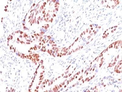 Immunohistochemistry (Formalin/PFA-fixed paraffin-embedded sections) - Anti-p57 Kip2 antibody [KIP2/880] (ab220207)