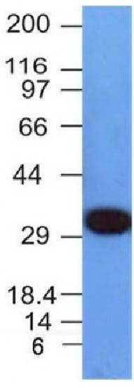 Western blot - Anti-PCNA antibody [PCNA/694] (ab220208)