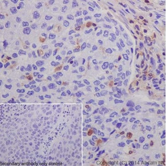 Immunohistochemistry (Formalin/PFA-fixed paraffin-embedded sections) - Anti-S100A4 antibody [EPR14639(2)] - BSA and Azide free (ab220213)