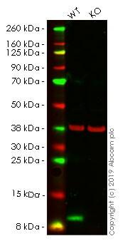 Western blot - Anti-S100A4 antibody [EPR14639(2)] - BSA and Azide free (ab220213)