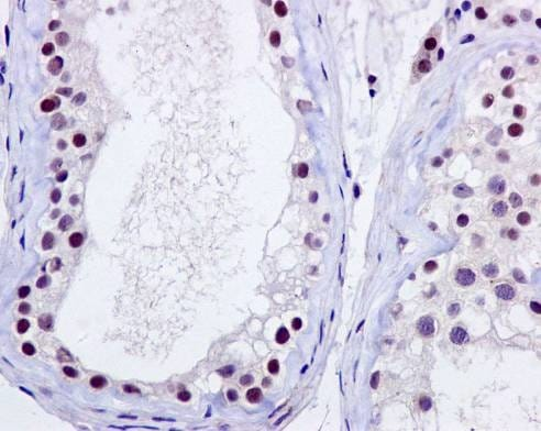 Immunohistochemistry (Formalin/PFA-fixed paraffin-embedded sections) - Anti-p95/NBS1 antibody [Y112] - BSA and Azide free (ab220217)