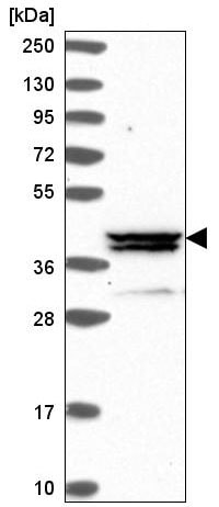 Western blot - Anti-METT5D1 antibody (ab220228)