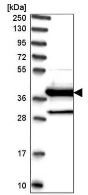 Western blot - Anti-DNAJC22 antibody (ab220239)