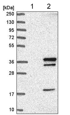 Western blot - Anti-Swd2 antibody (ab220240)