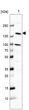 Western blot - Anti-Phospholipase C beta 2/PLCB2 antibody - C-terminal (ab220285)