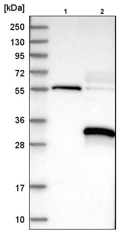 Western blot - Anti-MARCH2 antibody (ab220292)