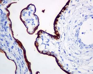 Immunohistochemistry (Formalin/PFA-fixed paraffin-embedded sections) - Anti-Placental alkaline phosphatase (PLAP) antibody [EPR6141] - BSA and Azide free (ab220315)