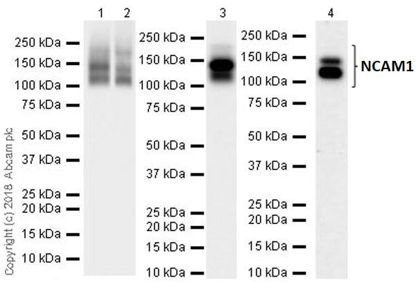 Western blot - Anti-NCAM1 antibody [EPR21827] (ab220360)