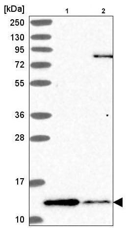 Western blot - Anti-TIP-1 antibody (ab220383)