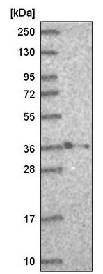 Western blot - Anti-HOXB2 antibody (ab220390)