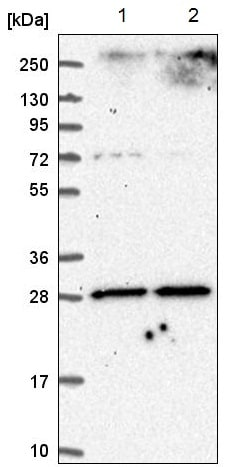 Western blot - Anti-Adenine Nucleotide Translocase 1/ANT 1 antibody (ab220408)