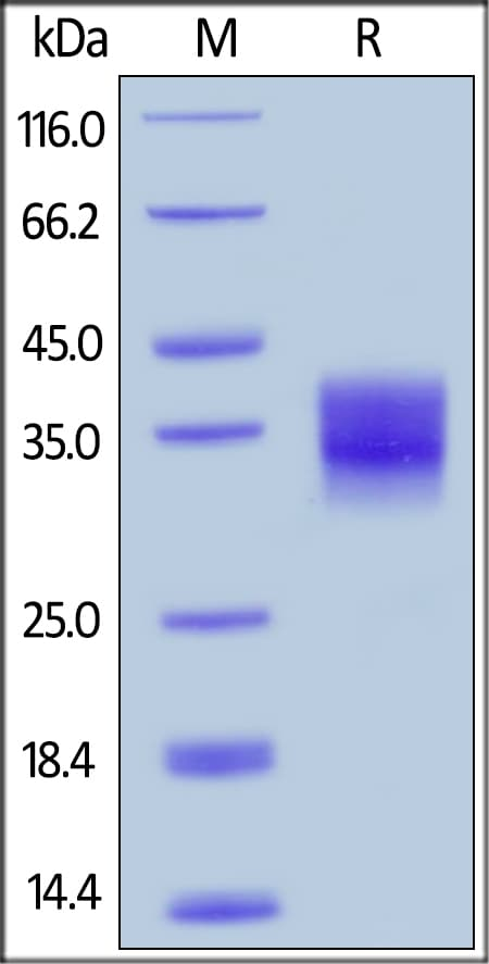 SDS-PAGE - Recombinant mouse CD32B protein (ab220446)