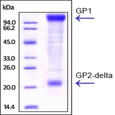 SDS-PAGE - Recombinant Envelope Glycoprotein (His tag) (ab220456)