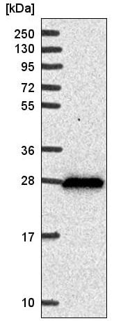 Western blot - Anti-DHRS2 antibody (ab220483)
