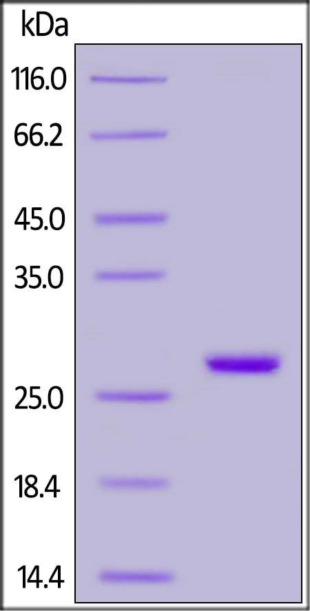SDS-PAGE - Recombinant Human PGP9.5 protein (His tag) (ab220529)
