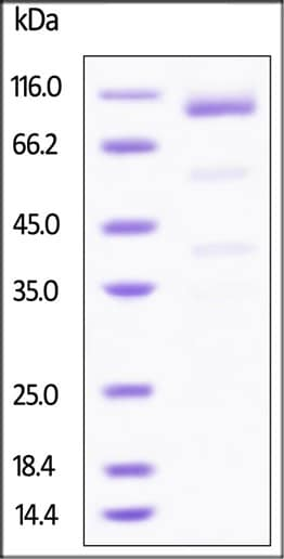 SDS-PAGE - Recombinant human Glypican 3 protein (Fc Chimera Active) (ab220538)