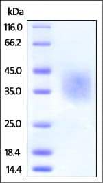 SDS-PAGE - Recombinant Human DcR2 protein (His tag) (ab220541)