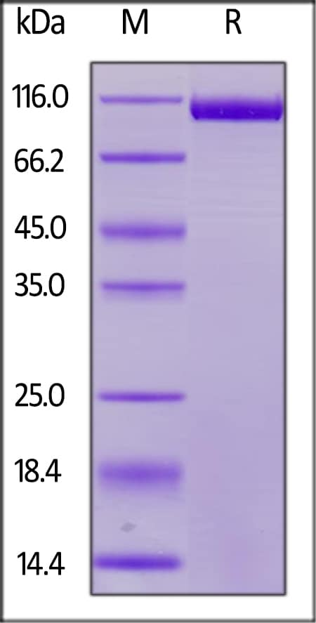 SDS-PAGE - Recombinant Human CD22 protein (His tag) (ab220572)