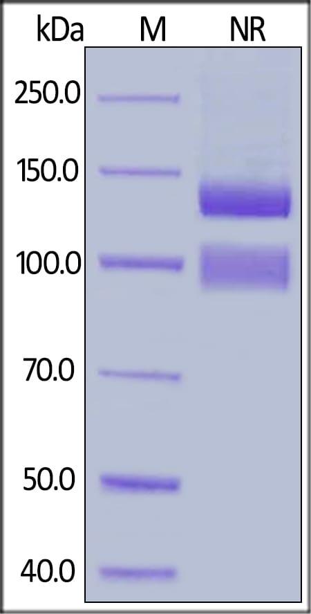 SDS-PAGE - Recombinant human Integrin alpha V + Integrin beta 1 protein (ab220599)