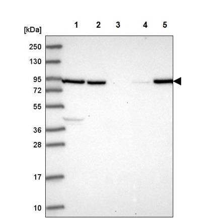 Western blot - Anti-NRG2 antibody (ab220615)