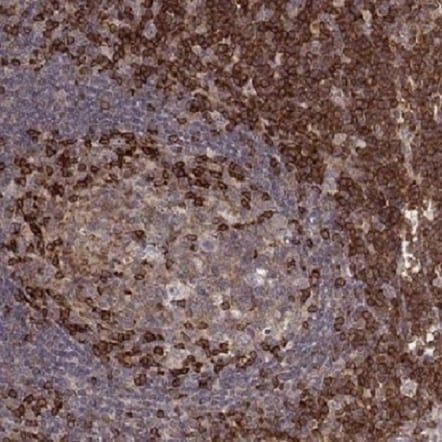 Immunohistochemistry (Formalin/PFA-fixed paraffin-embedded sections) - Anti-PILRA antibody (ab220673)
