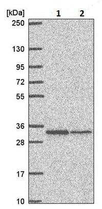 Western blot - Anti-TMEM81 antibody (ab220726)