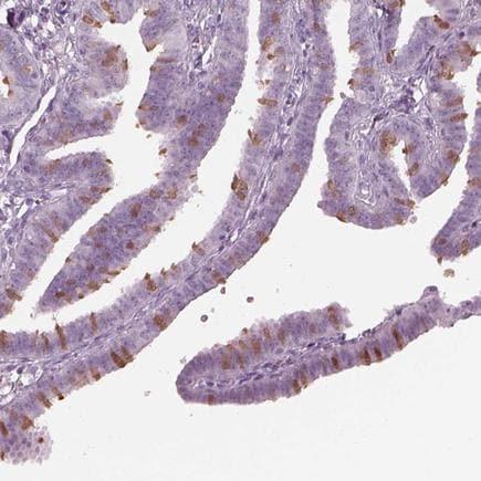 Immunohistochemistry (Formalin/PFA-fixed paraffin-embedded sections) - Anti-C2orf81 antibody (ab220733)