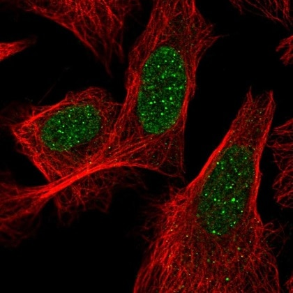 Immunocytochemistry/ Immunofluorescence - Anti-ACD antibody (ab220740)