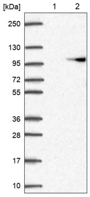 Western blot - Anti-AP2B1 antibody (ab220778)