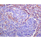 Immunohistochemistry (Formalin/PFA-fixed paraffin-embedded sections) - Anti-alpha smooth muscle Actin antibody [EPR5368] - BSA and Azide free (ab220795)