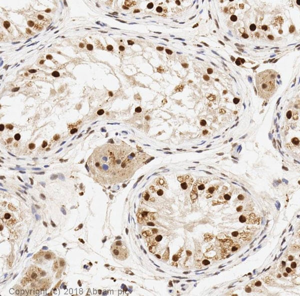 Immunohistochemistry (Formalin/PFA-fixed paraffin-embedded sections) - Anti-SIRT1 antibody [E104] - BSA and Azide free (ab220807)