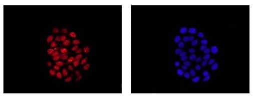 Immunocytochemistry/ Immunofluorescence - Anti-SOX9 antibody [EPR14335] - BSA and Azide free (ab220812)