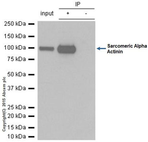 Immunoprecipitation - Anti-Sarcomeric Alpha Actinin antibody [EP2529Y] - BSA and Azide free (ab220817)