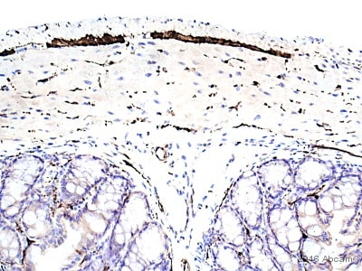Immunohistochemistry (Formalin/PFA-fixed paraffin-embedded sections) - Anti-PGP9.5 antibody [EPR4118] - BSA and Azide free (ab220823)