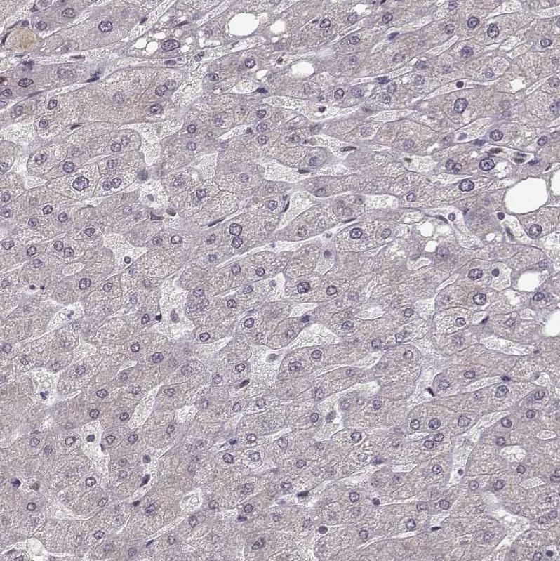 Immunohistochemistry (Formalin/PFA-fixed paraffin-embedded sections) - Anti-Plakophilin 2/PKP2 antibody (ab220840)