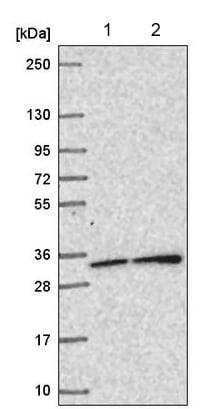 Western blot - Anti-SNAP29 antibody (ab220873)