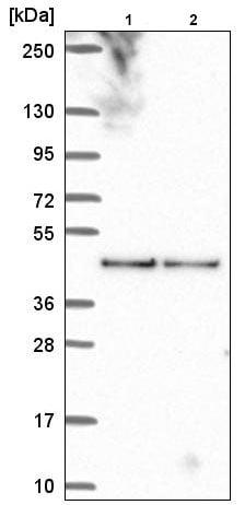 Western blot - Anti-Lyspersin antibody (ab220930)