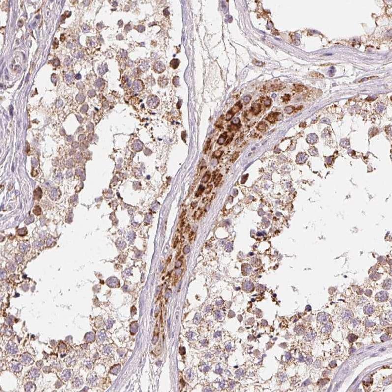 Immunohistochemistry (Formalin/PFA-fixed paraffin-embedded sections) - Anti-HINT2 antibody (ab220935)