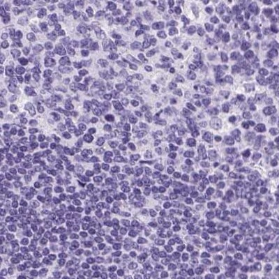 Immunohistochemistry (Formalin/PFA-fixed paraffin-embedded sections) - Anti-Keratin 12/K12 antibody (ab220948)