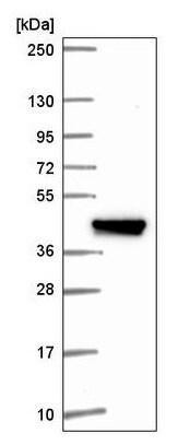 Western blot - Anti-IFIT5 antibody (ab220954)