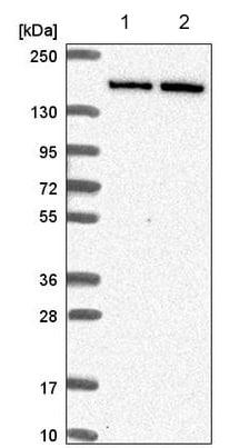 Western blot - Anti-DIP2C antibody (ab220973)