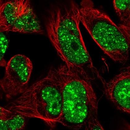 Immunocytochemistry/ Immunofluorescence - Anti-RNF169 antibody (ab220993)