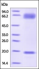 SDS-PAGE - Recombinant human PCSK9 protein (Active) (ab221019)