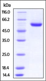 SDS-PAGE - Recombinant Human ROR2 protein (His tag) (ab221029)