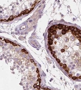 Immunohistochemistry (Formalin/PFA-fixed paraffin-embedded sections) - Anti-RAP55B antibody (ab221041)