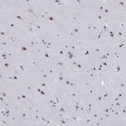 Immunohistochemistry (Formalin/PFA-fixed paraffin-embedded sections) - Anti-SOX8 antibody (ab221053)