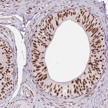 Immunohistochemistry (Formalin/PFA-fixed paraffin-embedded sections) - Anti-AP2 beta antibody (ab221094)