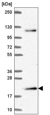 Western blot - Anti-MSC antibody (ab221097)